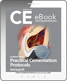 Practical Cementation Protocols eBook Thumbnail